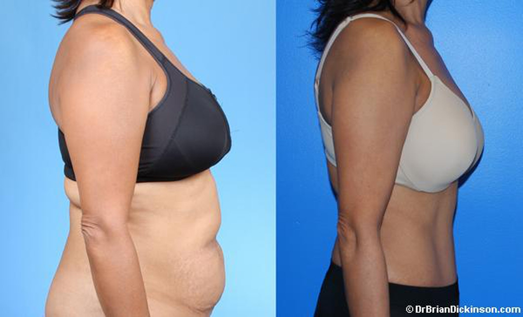 best_abdominoplasty_surgeon_orange_county