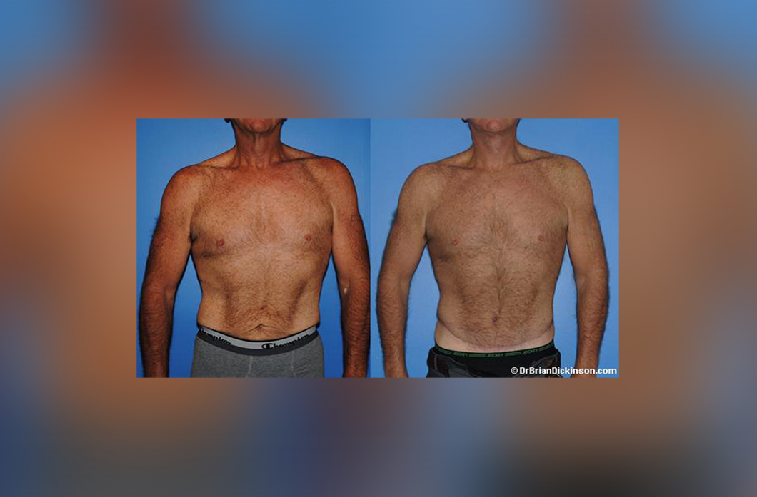 male_abdominoplasty_newport_beach