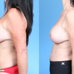 Abdominoplasty-Dickinson-Profile
