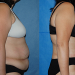 Abdominoplasty-Sleeve Gastrectomy-Dickinson-Orange County
