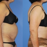 Abdominoplasty-Tummy Tuck II