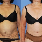 Abdominoplasty-Tummy Tuck