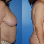Body Contouring-Dickinson-Newport Beach-Beverly Hills-Orange County