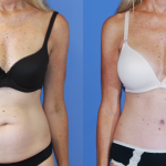 Breast Augmentation-Abdominoplasty II
