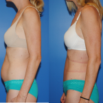 Dickinson-Newport Beach-Tummy Tuck