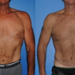 abdominoplasty_NB
