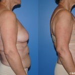abdominoplasty_NB1