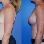 abdominoplasty_NB10