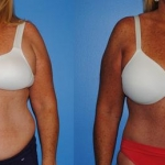 abdominoplasty_NB4