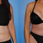 abdominoplasty_NB5
