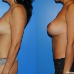 abdominoplasty_NB6