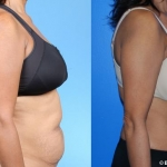 abdominoplasty_NB8