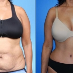abdominoplasty_NB9