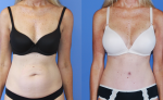 thumb_Breast Augmentation-Abdominoplasty II
