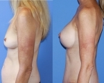 thumb_Breast Augmentation-Abdominoplasty