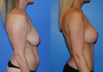 thumb_Mastopexy Augmentation-Newport Beach-Dickinson