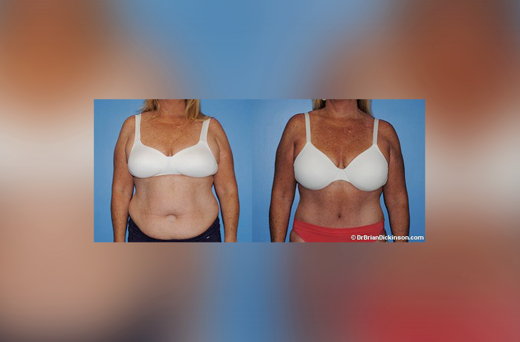 tummy_tuck_newport_beach_surgeon