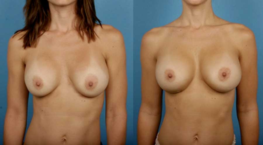Breast Augmentation Silicone Breast Implants