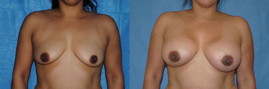 Areolar Incision Breast Augmentation