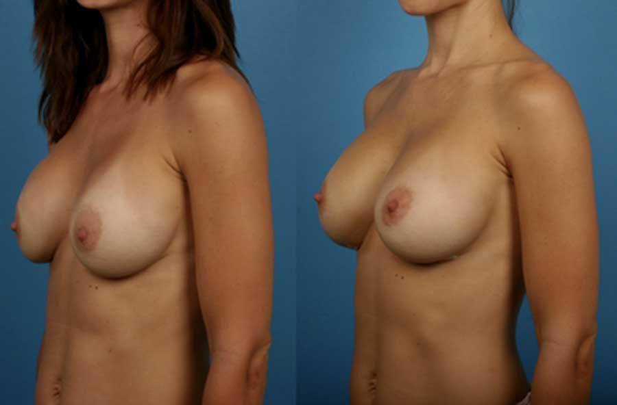 Breast Augmentation Silicone Breast Implants Newport Beach