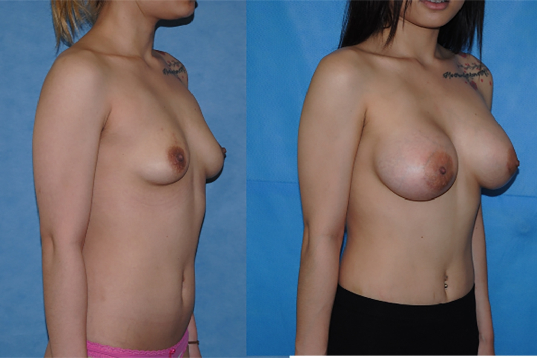 Before-and-After-Breast-Augmentation-Orange-County-California