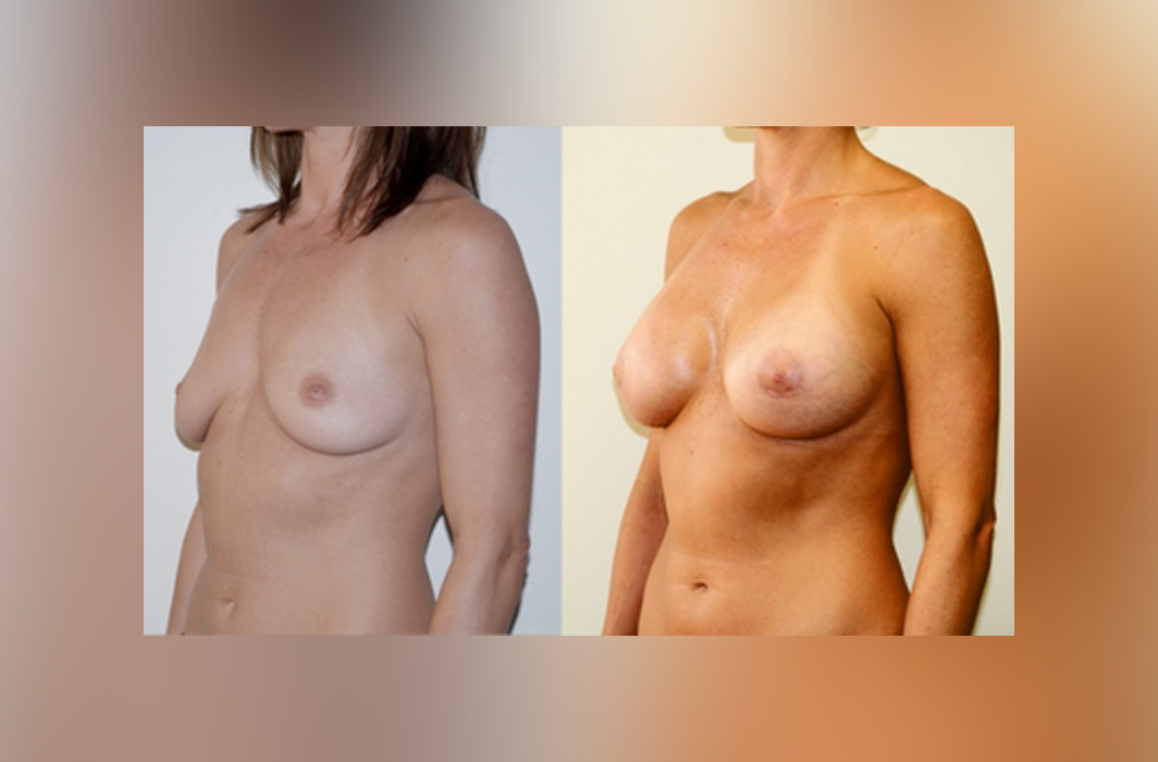 Subglandular_Silicone-Breast-Implant