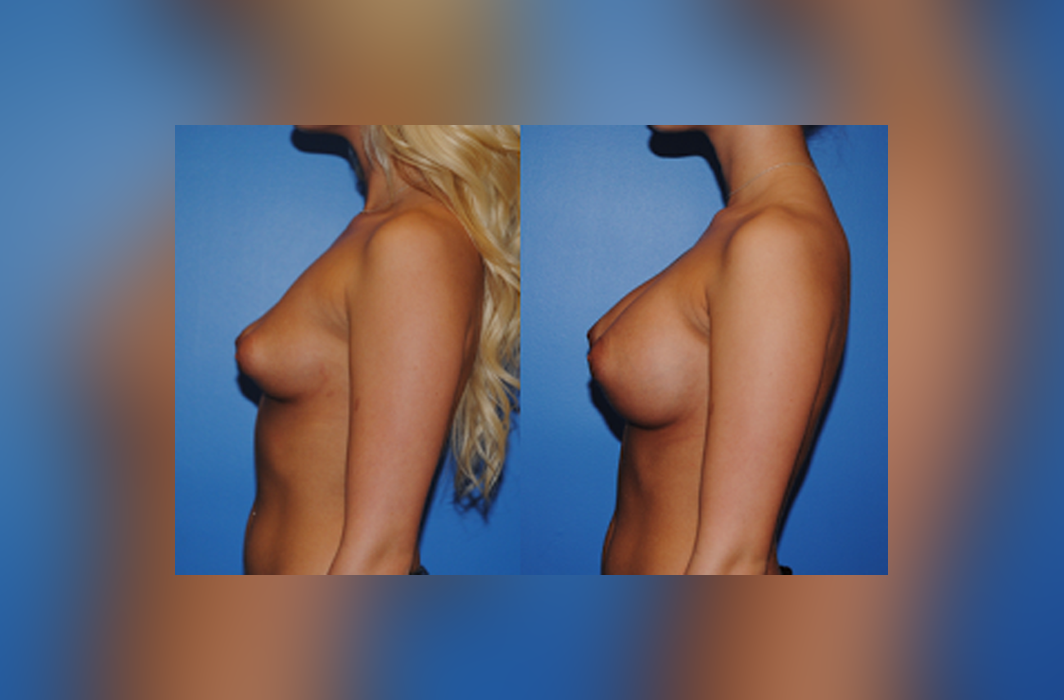 Breast-Augmentation-Beach-Tuberous