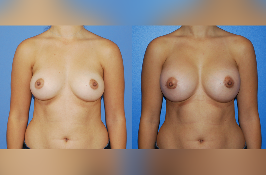 Breast-Augmentation-Full-C-Small-D