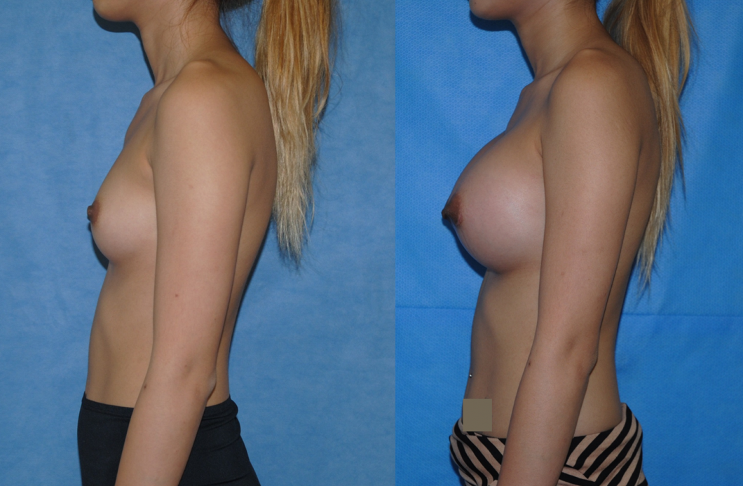 Breast Augmentation Newport Beach-Orange County