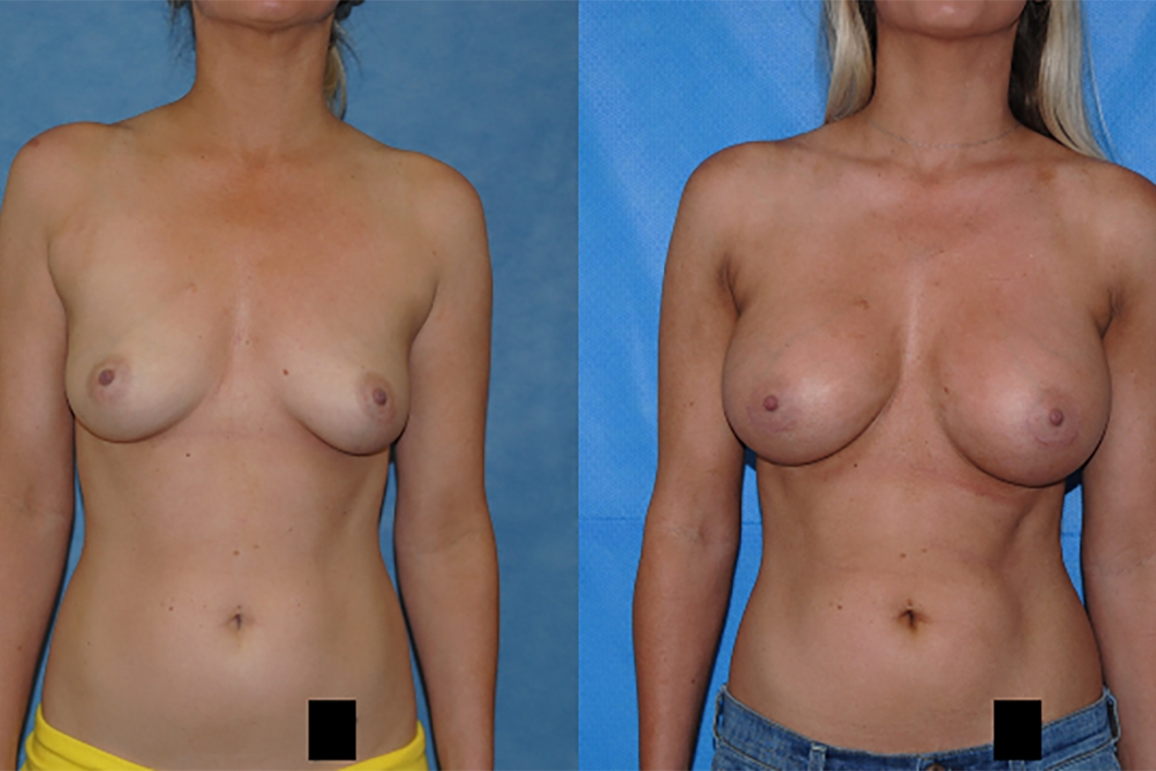 Breast-Augmentation-Newport-Beach-Silicone-Implants-Brian-Dickinson