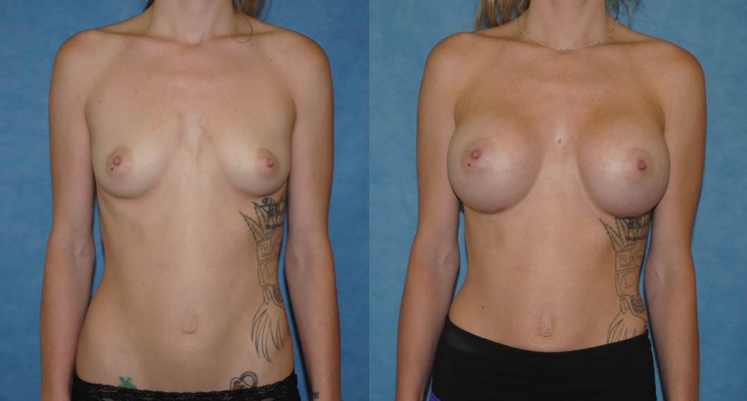 Breast Augmentation-Orange County-Brian Dicknson MD-Newport Beach-Silicone Implants