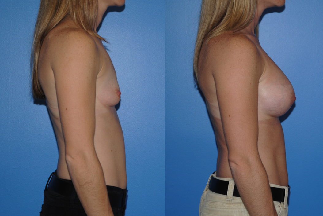 Breast Augmentation-Orange County-Dickinson-Newport Beach-Breast Implants