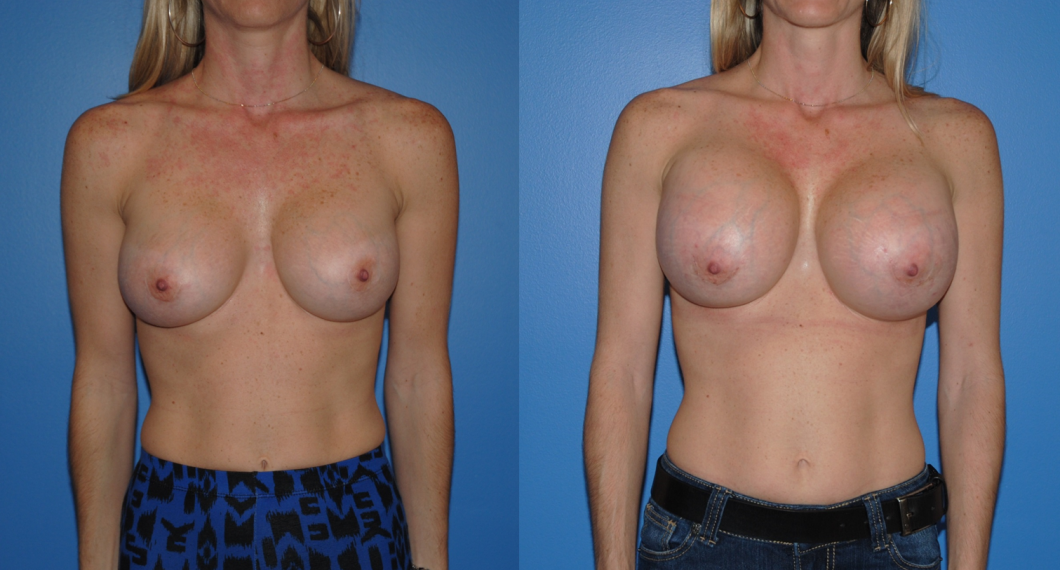 Breast Augmentation-Revision-Newport Beach-Orange County