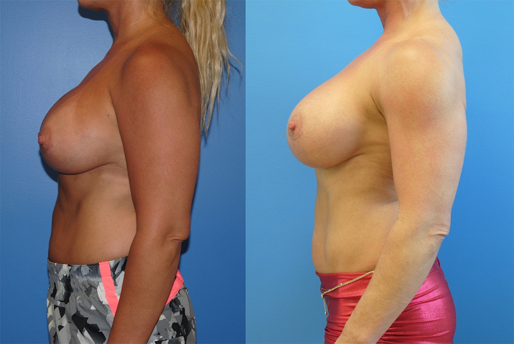 Breast-Augmentation-Silicone-Implants-Brian-Dickinson-photos