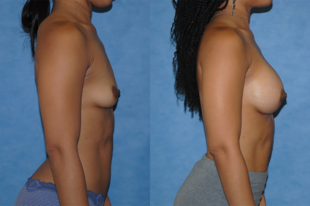 Breast-Augmentation-Silicone-Implants-Newport-Beach-Dickinson