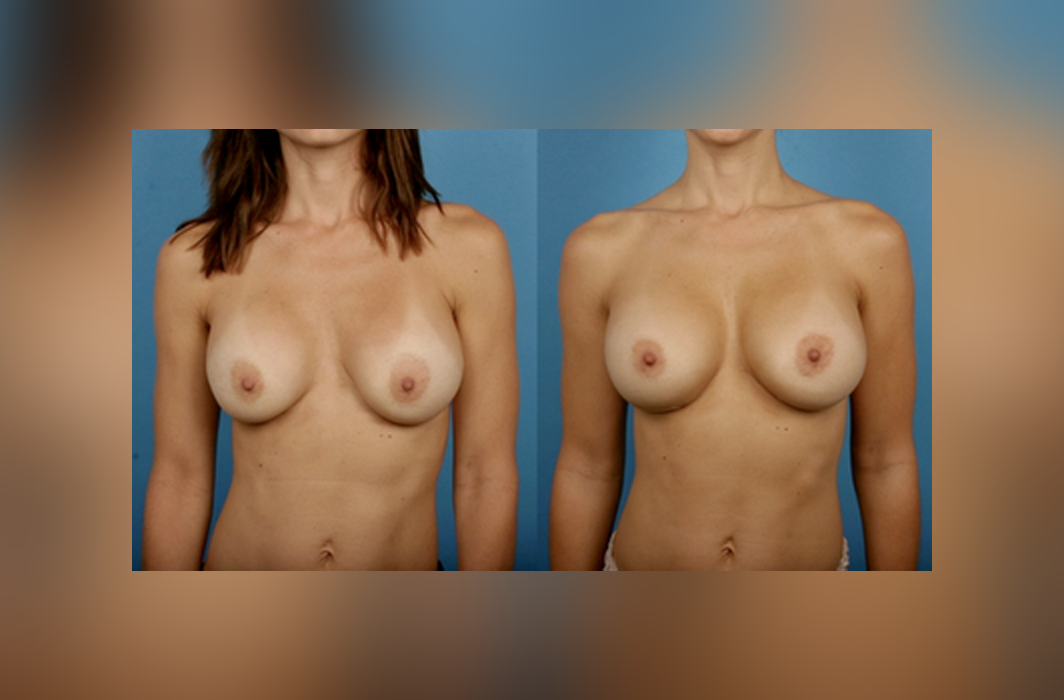 Breast-Augmentation-Sizing_Breast-Implants_Silicone