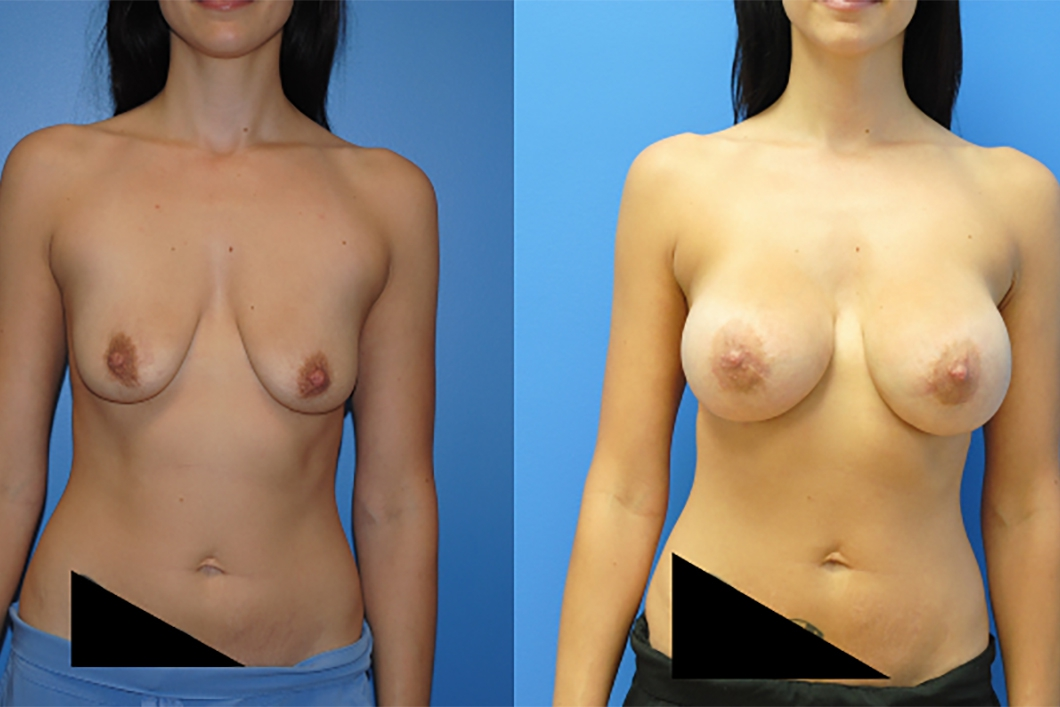 Breast-Augmentation-dr-Dickinson-Newport-Beach