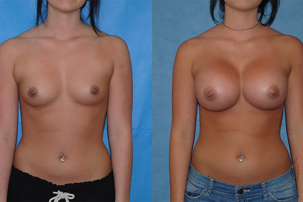 Breast-Augmentation-surgeon-OC
