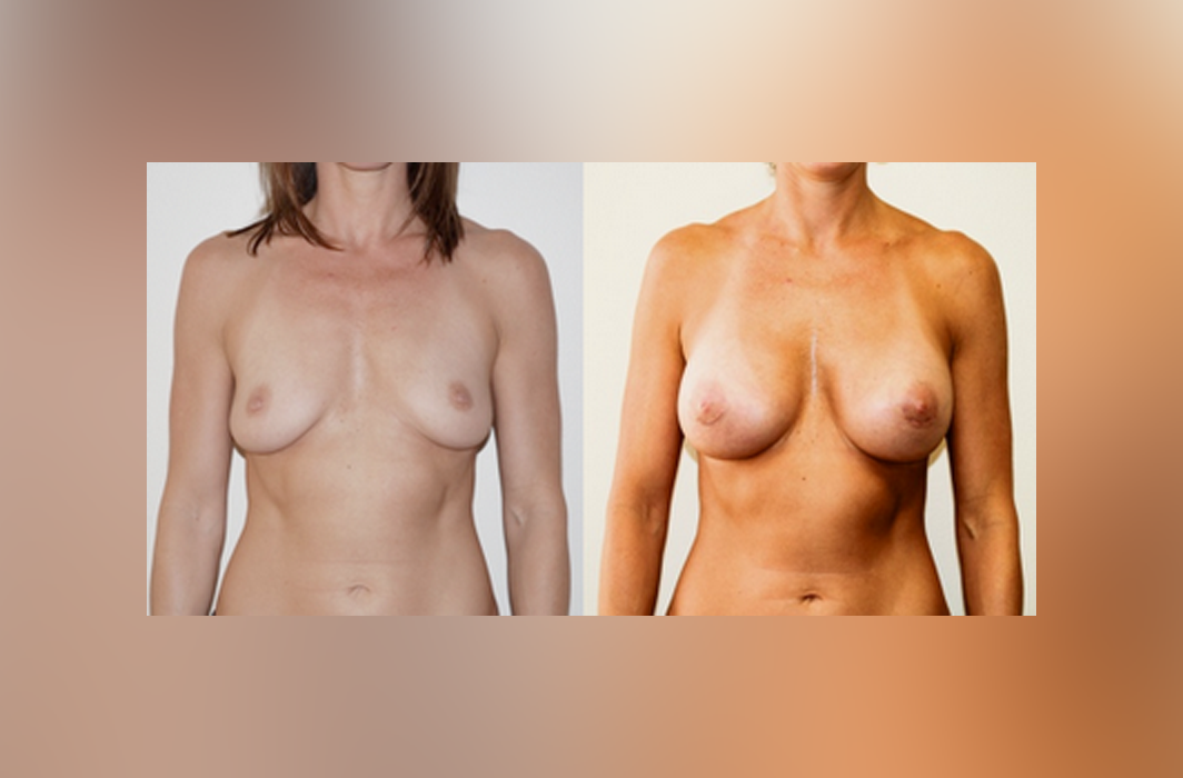 Breast-Augmentation Subglandular_Silicone-Implant