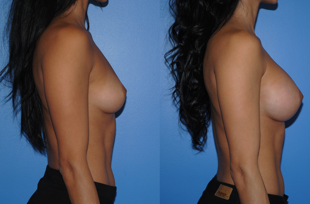 Breast-Augmentation_Silicone-Breast-Implants_Natural-Looking-Breast-Augmentation