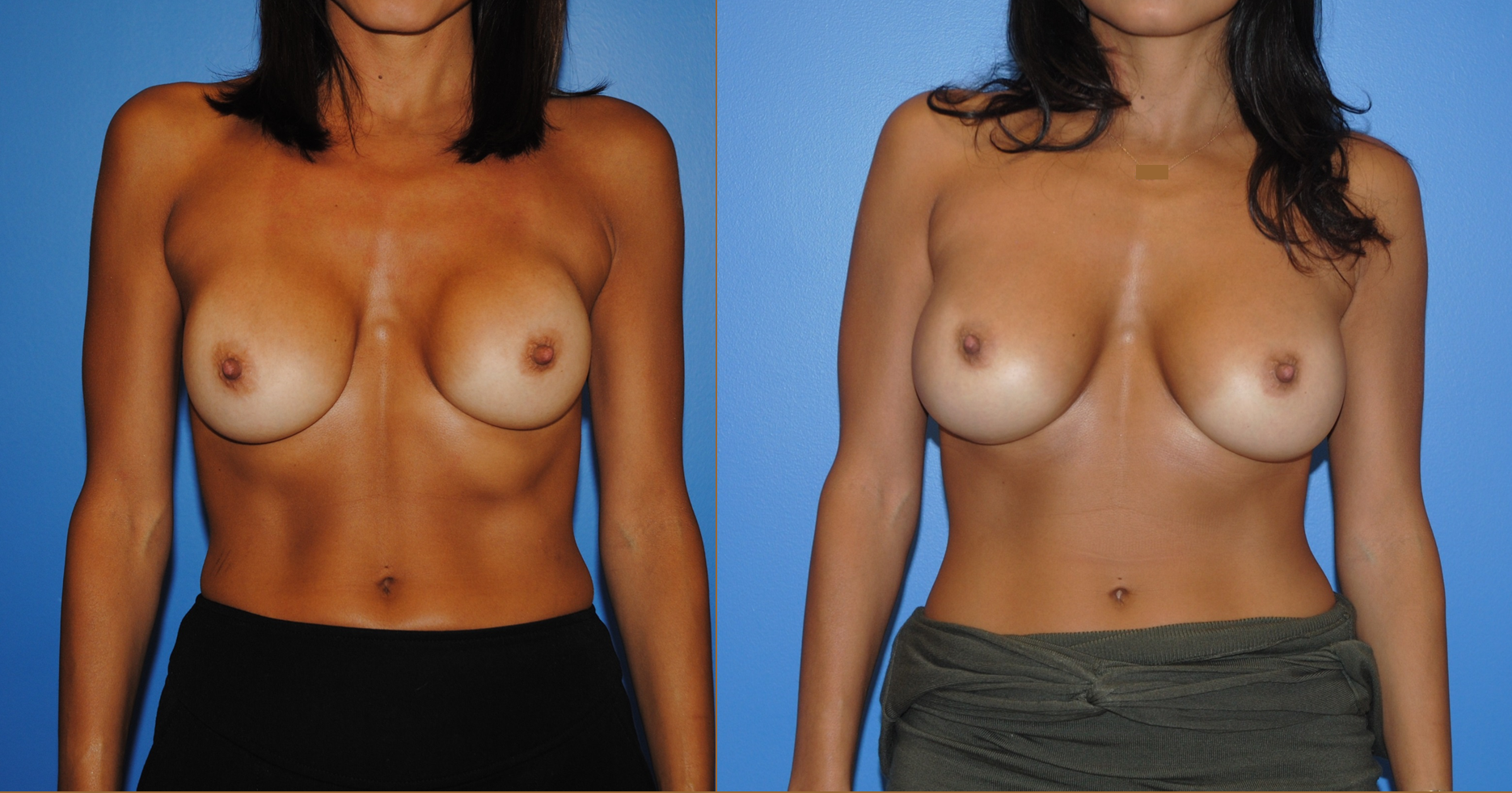 Capsular Contracture-Revision Breast Augmentation Surgery