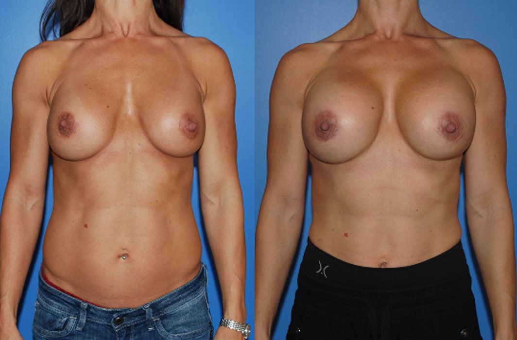High-Profile-Breast-Implants_Newport-Beach_Orange-County_Brian-Dickinson-MD