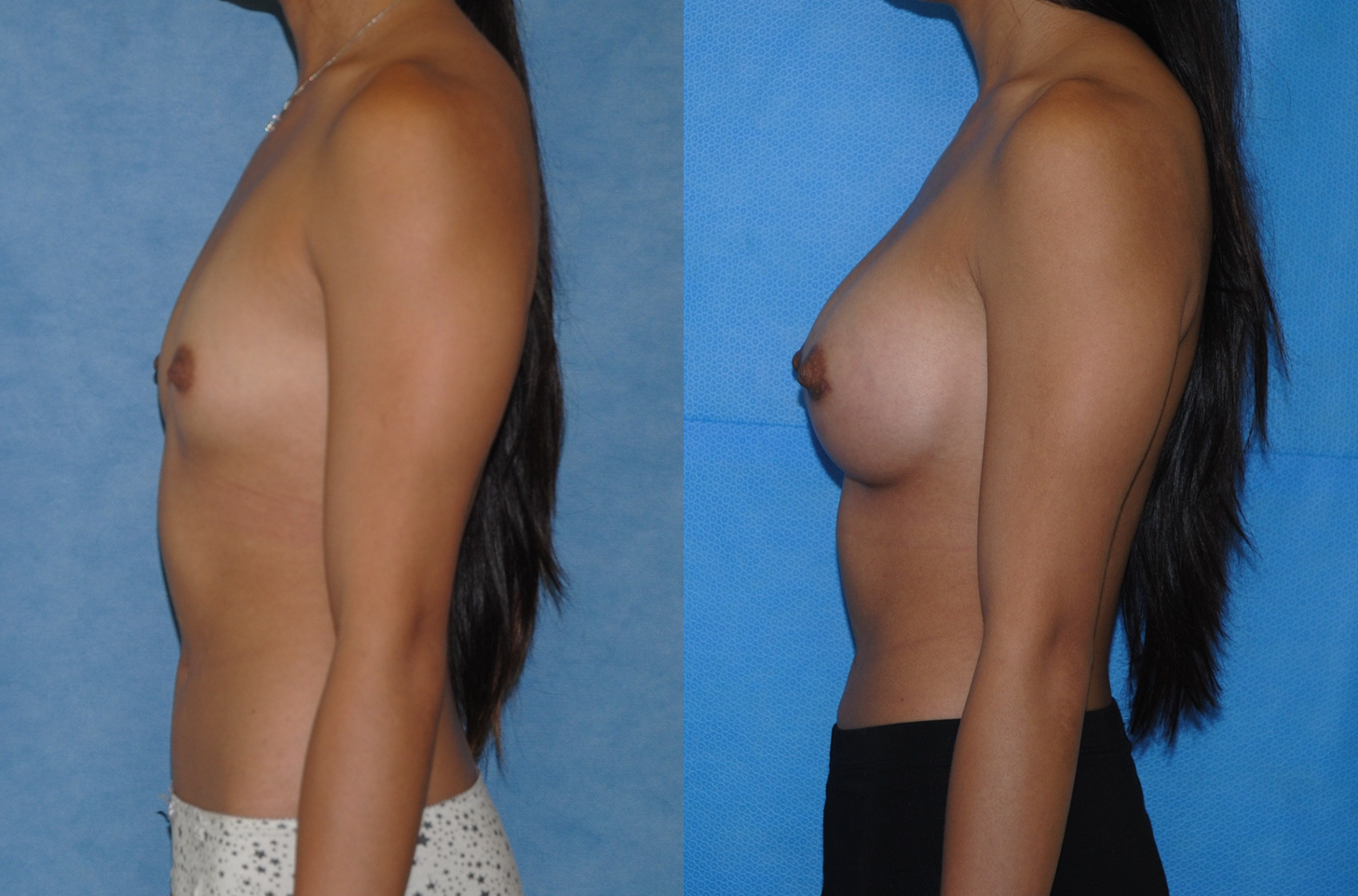 Saline Breast Aug-Newport Beach-Orange County California
