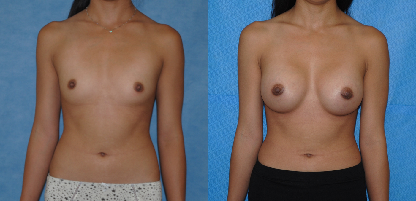 Saline Breast Augmentation-Orange County-Newport Beach
