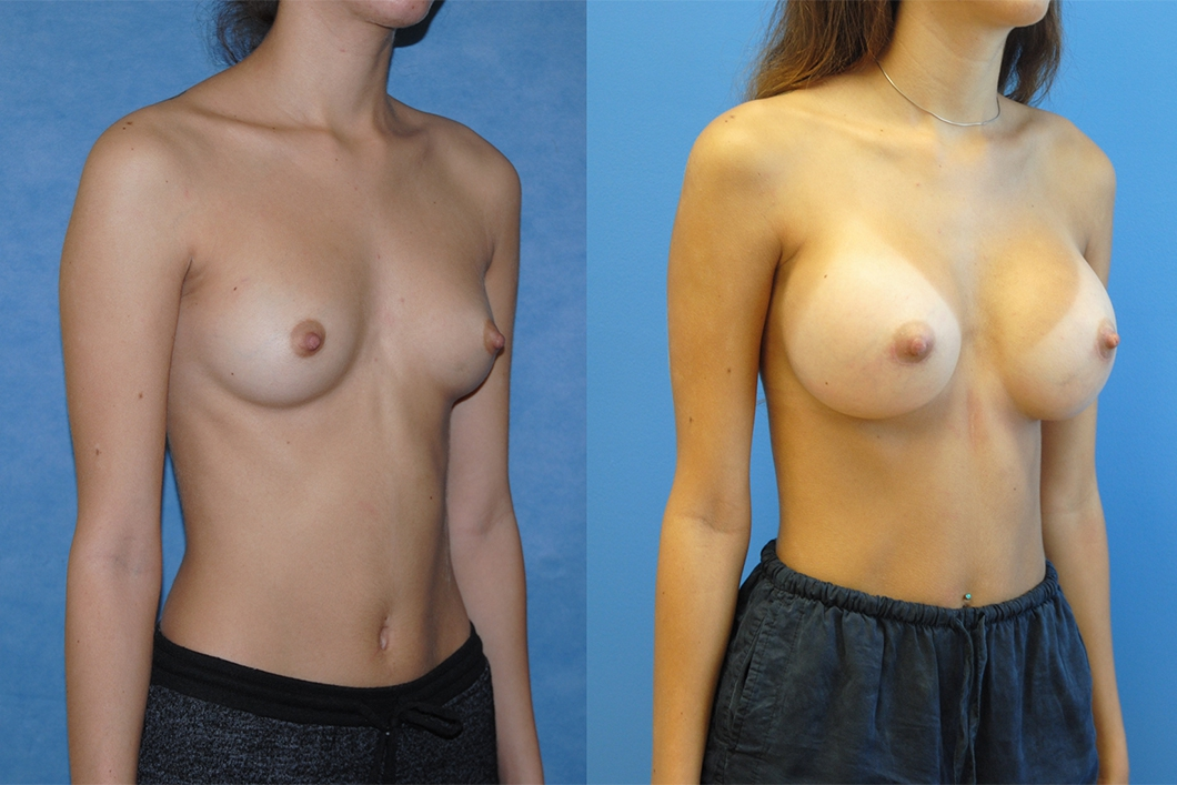 best-breast-aug-surgeon-newport-beach