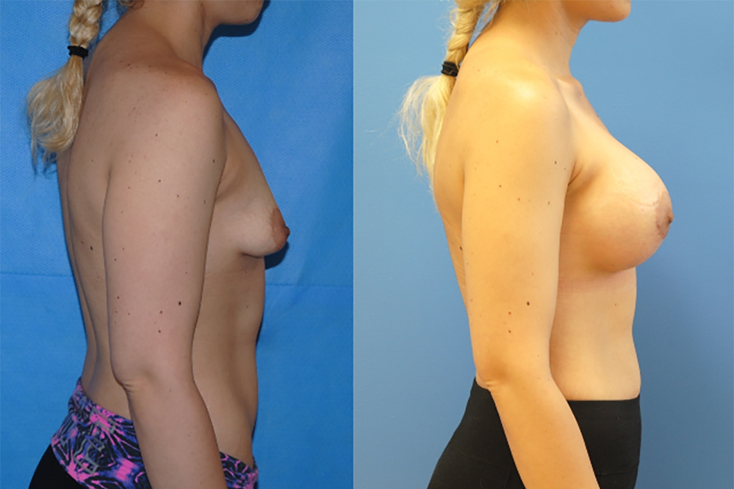breast-implants-newport-beach