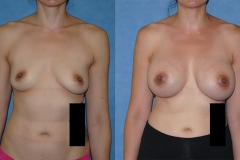 Before-and-After-Breast-Augmentation-doctor-Brian-Dickinson