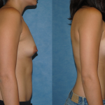 Breast Augmntation-Saline Implants-Orange County