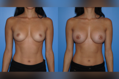 Breast-Augmentaion_Newport-Beach_Silicone-Implants