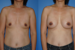 Breast-Augmentation-Dickinson-Newport-Beach